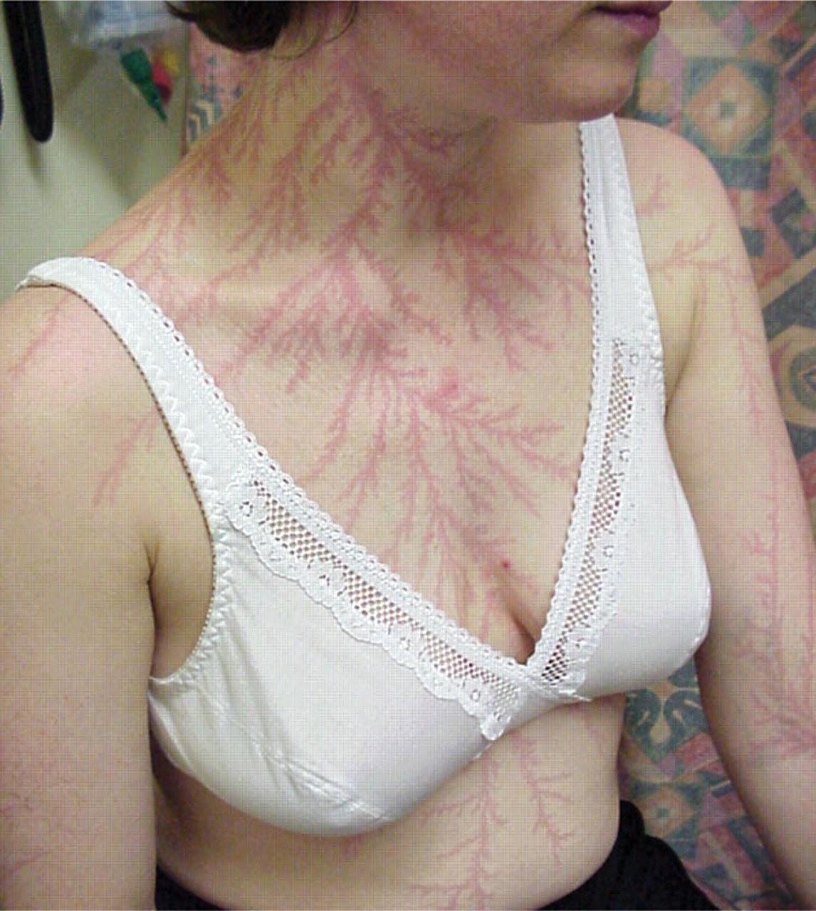 figures de Lichtenberg sur la peau d'une personne foudroyée